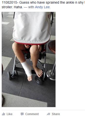Xin sprain ankle