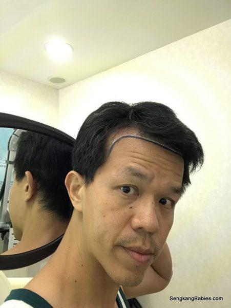 Who needs Hair Transplant in Singapore - Sengkang Babies
